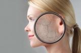 Шелушиться кожа: что делать и как решить проблему (рецепты эффективные маски для лица)