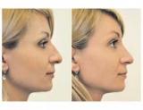 Исправь форму носа или все, что вы должны знать о ринопластике